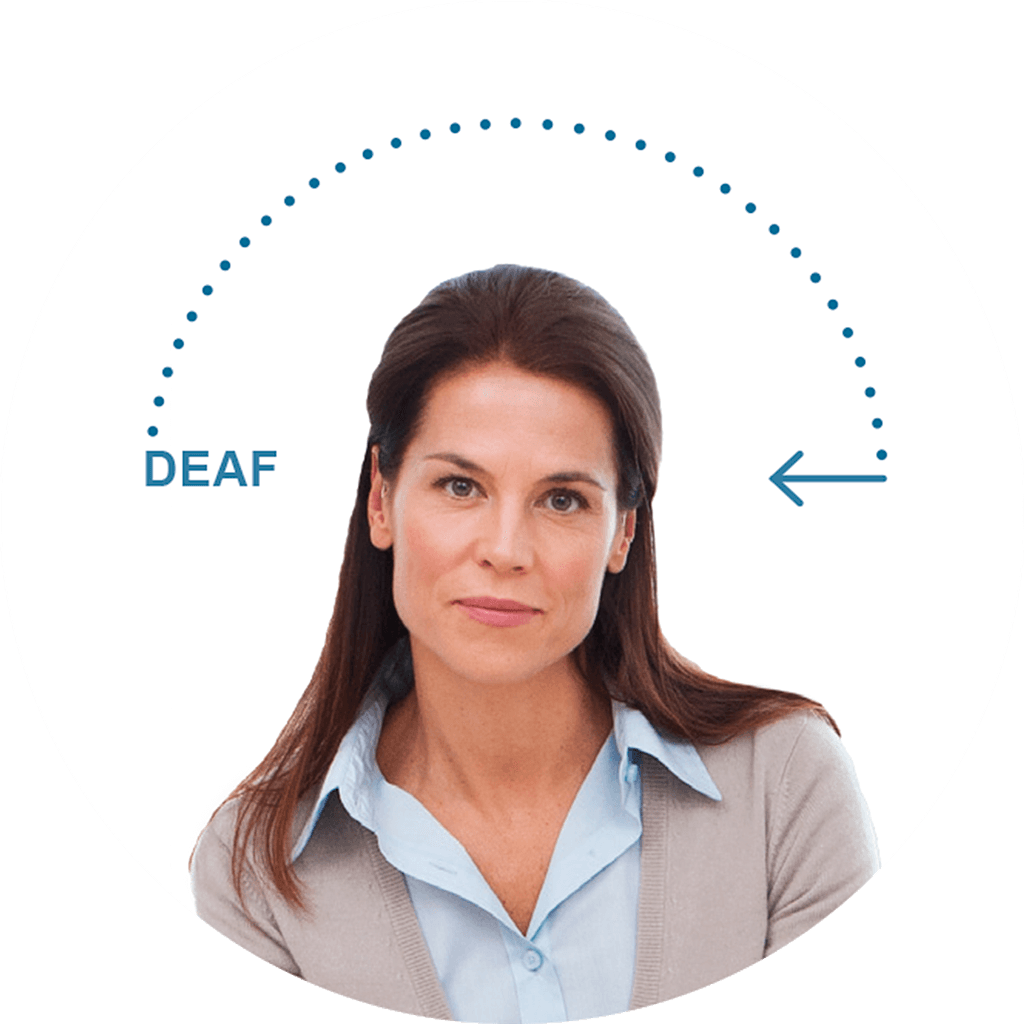 widex-cros-for-single-sided-deafness